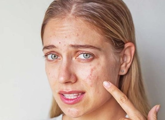 chemical peels for acne
